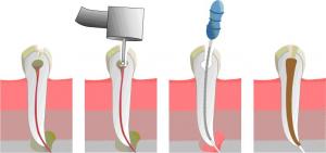 Endodontija 300x141