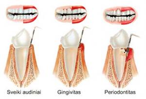 periodontologija 300x205