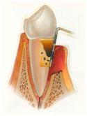 periodontinis gydymas4
