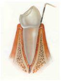 periodontinis gydymas