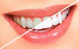 Dantų balinimas prieš ir po 2 300x187