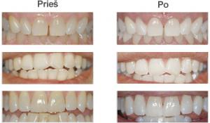 Dantų balinimas prieš ir po 300x175